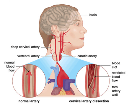 the-neurology-practice-arterial-dissection