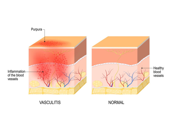 the-neurology-practice-vasculitis